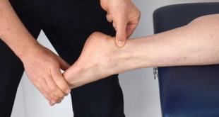 Estudo questiona tratamento estabelecido para fraturas de tornozelo