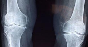 Raio-x de paciente com Doença óssea no mieloma múltiplo