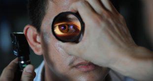 Médico verifica manifestações oculares mais frequentes na síndrome antifosfolípide (SAF)