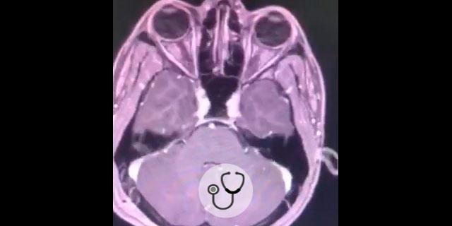 imagem de cistos coloides