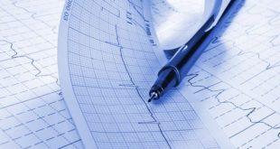 eletrocardiograma representando o ESC 2020