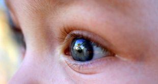 Crianças podem usar lentes de contato