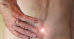 As hérnias de disco podem gerar compressões nas raízes nervosas