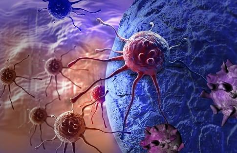 Representação gráfica de tumores estromais gastrointestinais (GIST).