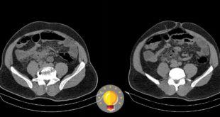imagem tomográfica de paciente com dor abdominal