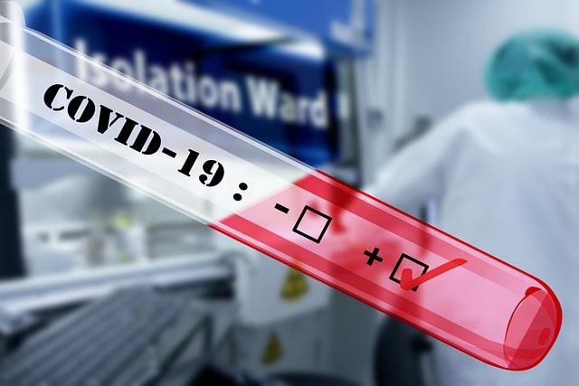 Teste para Covid-19 a fim de medir o índice de contaminação