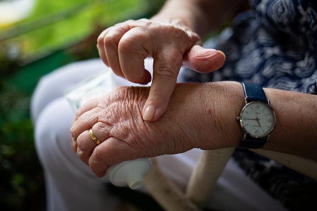 Upadacitinibe ou abatacepte no tratamento para artrite reumatoide?