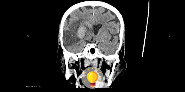imagem radiológica para quiz