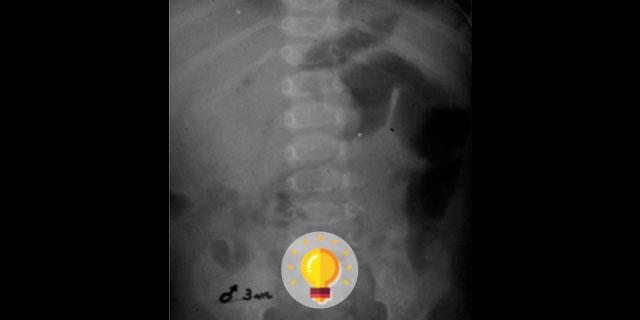 imagem radiológica de quiz