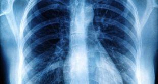 O pneumotórax, com elevada incidência na população, tem como quesito de maior relevância no seu manejo a prevenção de recorrências.