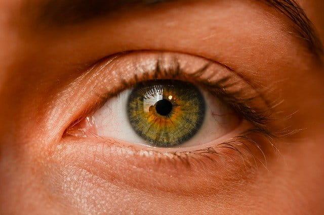 Paciente com glaucoma de ângulo fechado, o que fazer?