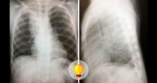 imagem de radiografia de tórax
