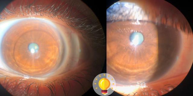 quiz de paciente com prurido ocular