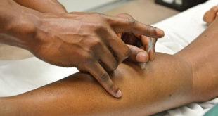 Paciente recebendo tratamento de acupuntura.