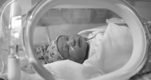 Neuroimagem pode ajudar na avaliação do bebê prematuro.