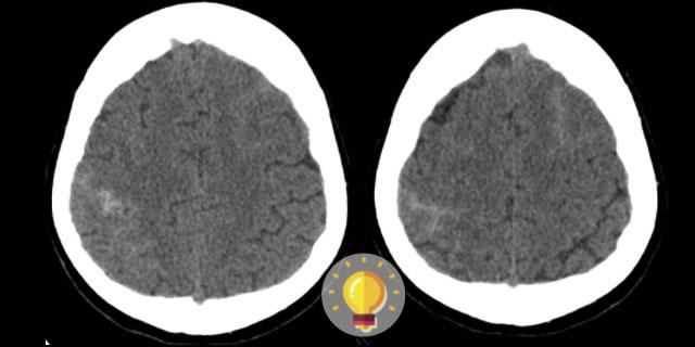 Paciente com cefaleia e fotofobia.