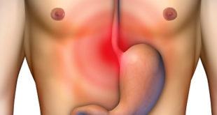 Aprovado novo tratamento, Esophyx, para refluxo crônico