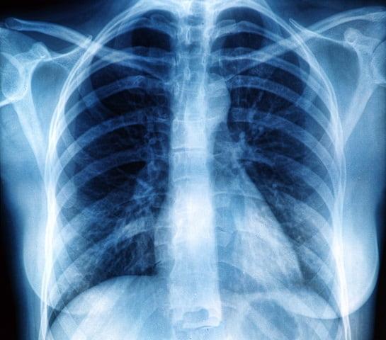 Atlas de Radiologia do Whitebook ajuda médicos na tomada de decisão