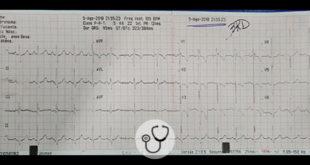 Caso clínico - Paciente 15 anos