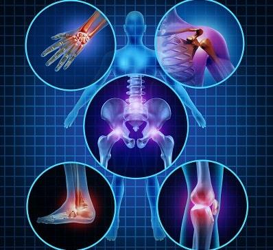Representação de artrite reumatoide que pode estar associada ao tromboembolismo venoso