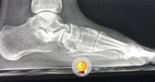 Paciente 15 anos, sexo masculino, com pé cavo, com dor e redução da mobilidade do pé direito.