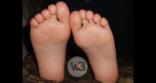 Em nossa publicação semanal de conteúdos compartilhados do Whitebook Clinical Decision vamos falar sobre infecções nos pés diabéticos.