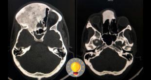 quiz displasia fibrosa