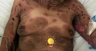Paciente do sexo feminino, 78 anos apresenta placas eritematovioláceas e pruriginosas. O que será?